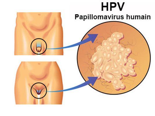 Tratament pentru gripa Human papillomavirus hpv osmosis