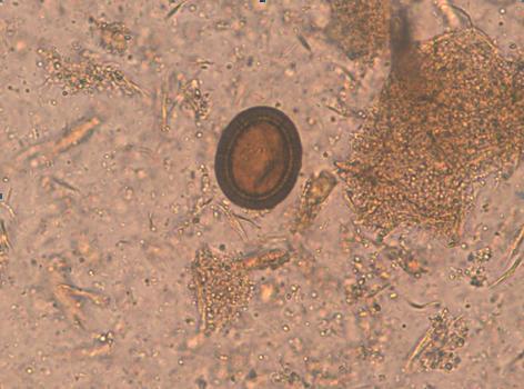 Parazitozele intestinale: giardioza si ascaridioza   nucleus-mc.ro