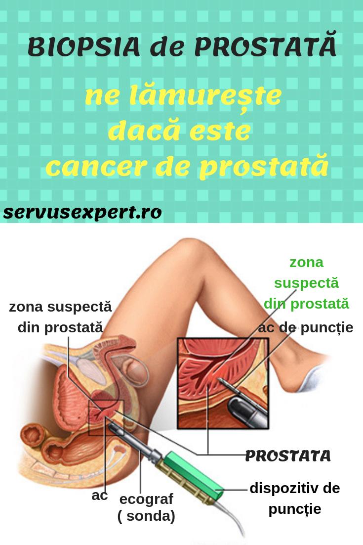 cancerul prostata simptome