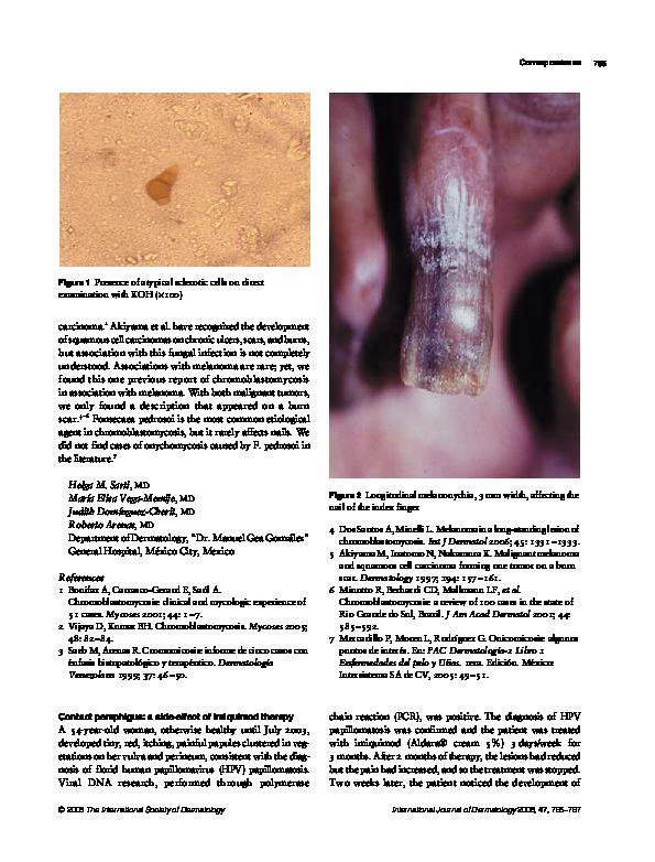 modul de identificare a condiloamelor vaginale)