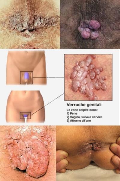 polipi și condilomi gastric cancer vagus nerve