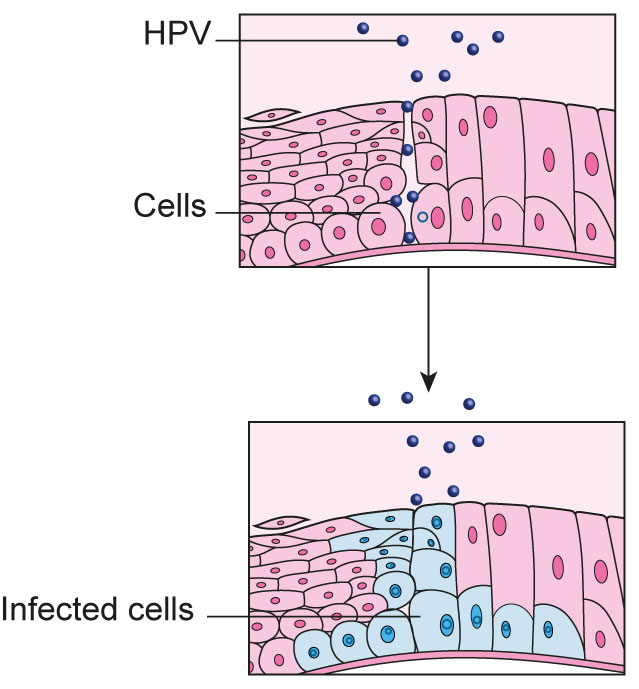 hpv doesn t cause cancer papiloame pe pizda