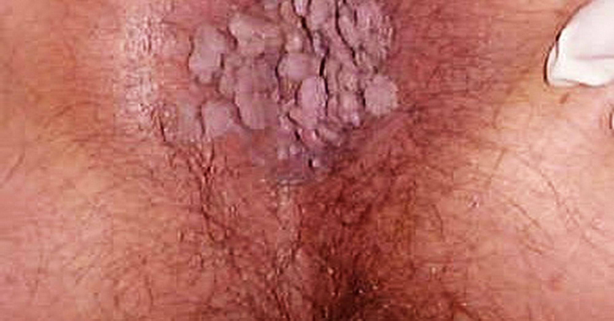 Papilloma virus puo guarire da solo, Papilloma virus guarigione