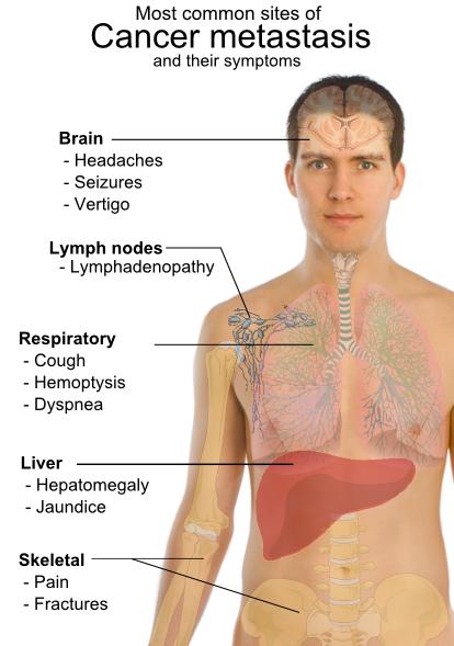 cancer la cap metastaza