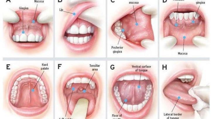papiloame ale canalelor glandelor mamare