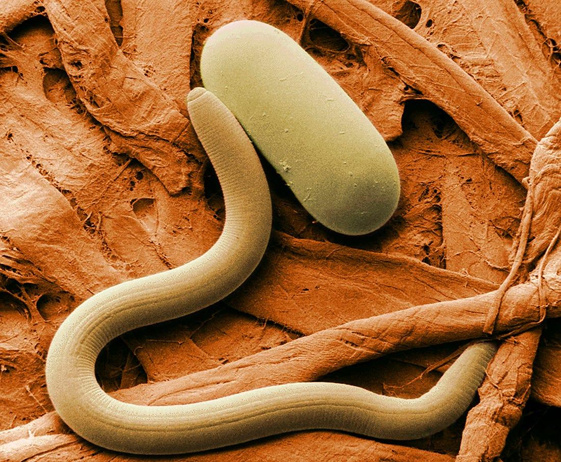 glandele de veruci ale bartholinului efectele secundare ale unei găuri de vierme