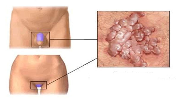 human papillomavirus noknel)
