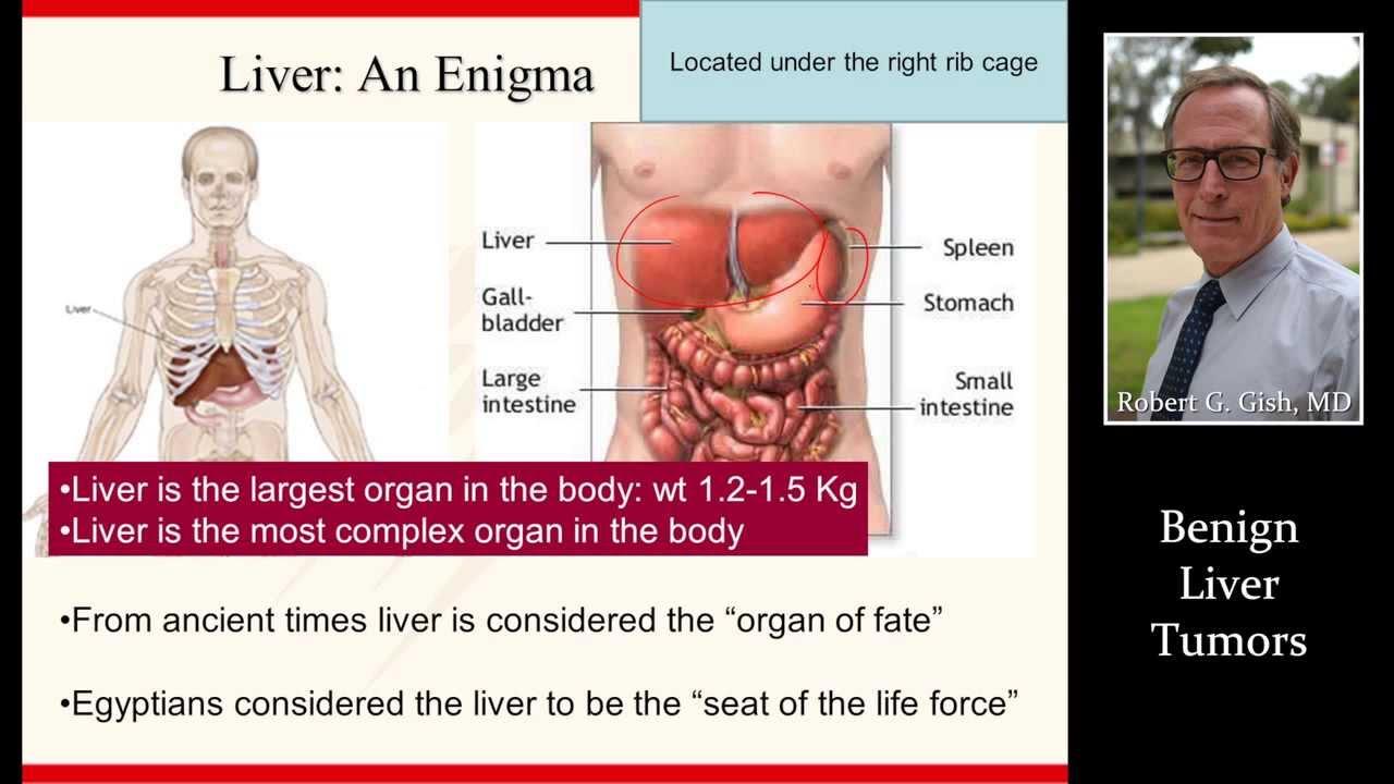 benign cancer in liver