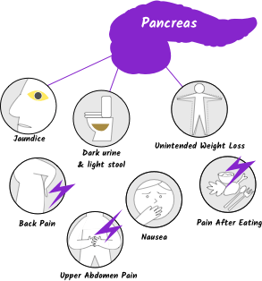 Cancerul pancreatic - Pancreatic cancer vs pancreatitis - Pancreatic cancer where is the pain