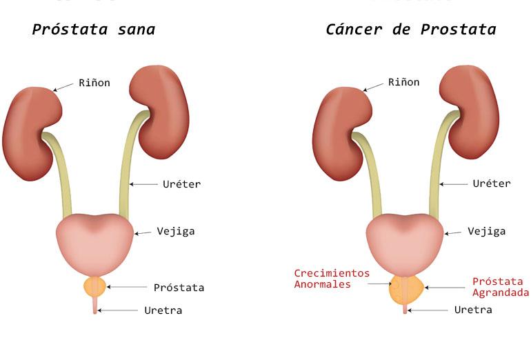 cancer de uretra femenino tratamentul și prevenirea condiloamelor
