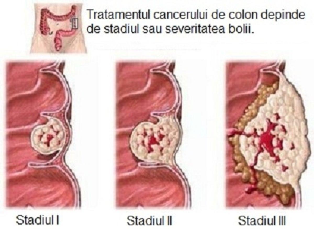 cancerul de colon la copii giardia u deti