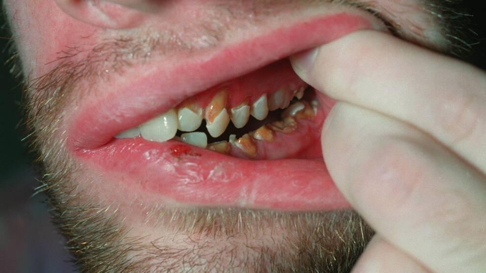 condiloame pe membrana mucoasă a buzelor mici)