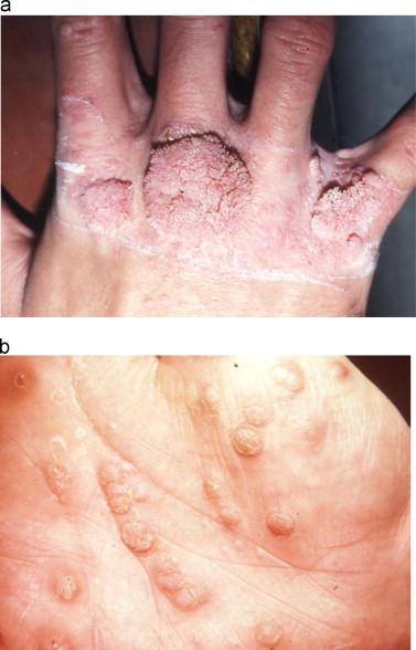 papillomavirus infection increases papilloma uomo