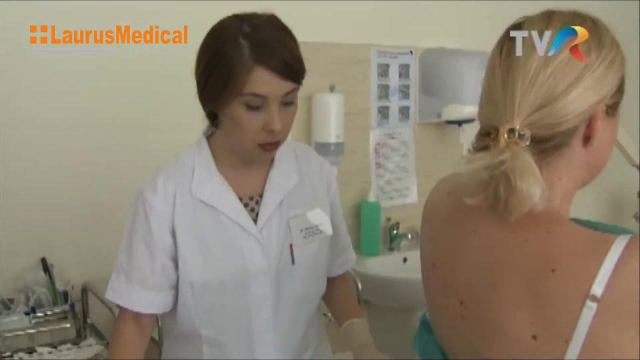 îndepărtarea tratamentului genital al condilomului