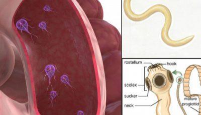 viermi scaun detoxifiere naturală pentru colon