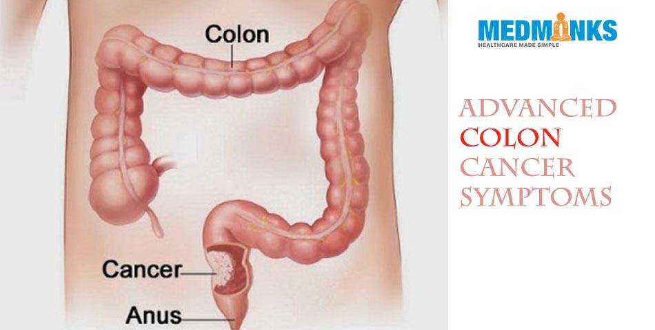 cancer peritoneal avanzado sintomas viermii la adulți determină tratament