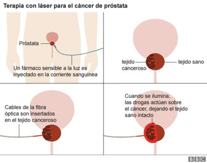 Hpv impfung lebend oder totimpfstoff, Cancer de col, Papilloma how to cure
