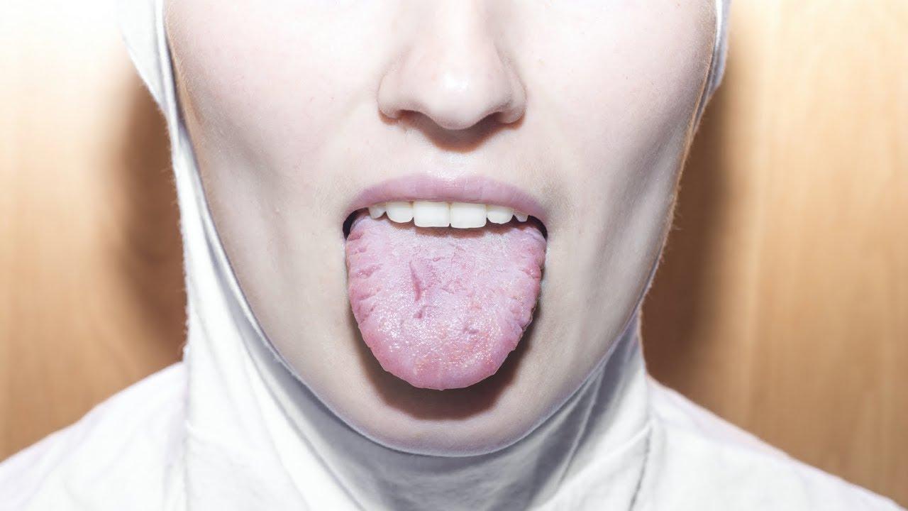 Cancerul laringian -manifestări, investigații, tratament – in2constient.ro