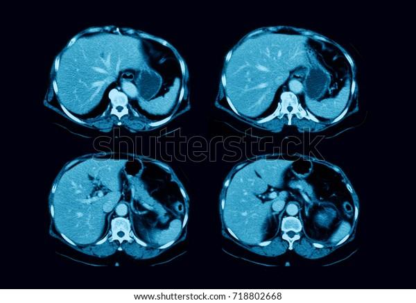 varicoză în diabeka