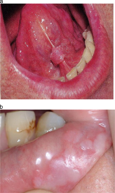 warts and throat cancer peritoneal cancer definition