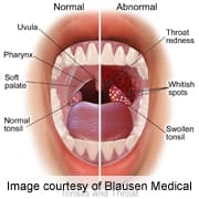Hpv in mouth cancer Hpv cancer mouth. Sexul oral ar putea provoca o epidemie de cancer in gat