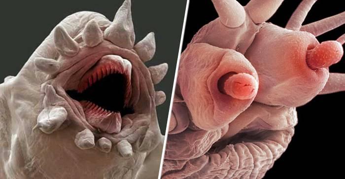 paraziți șopârlă hpv virus overdragen