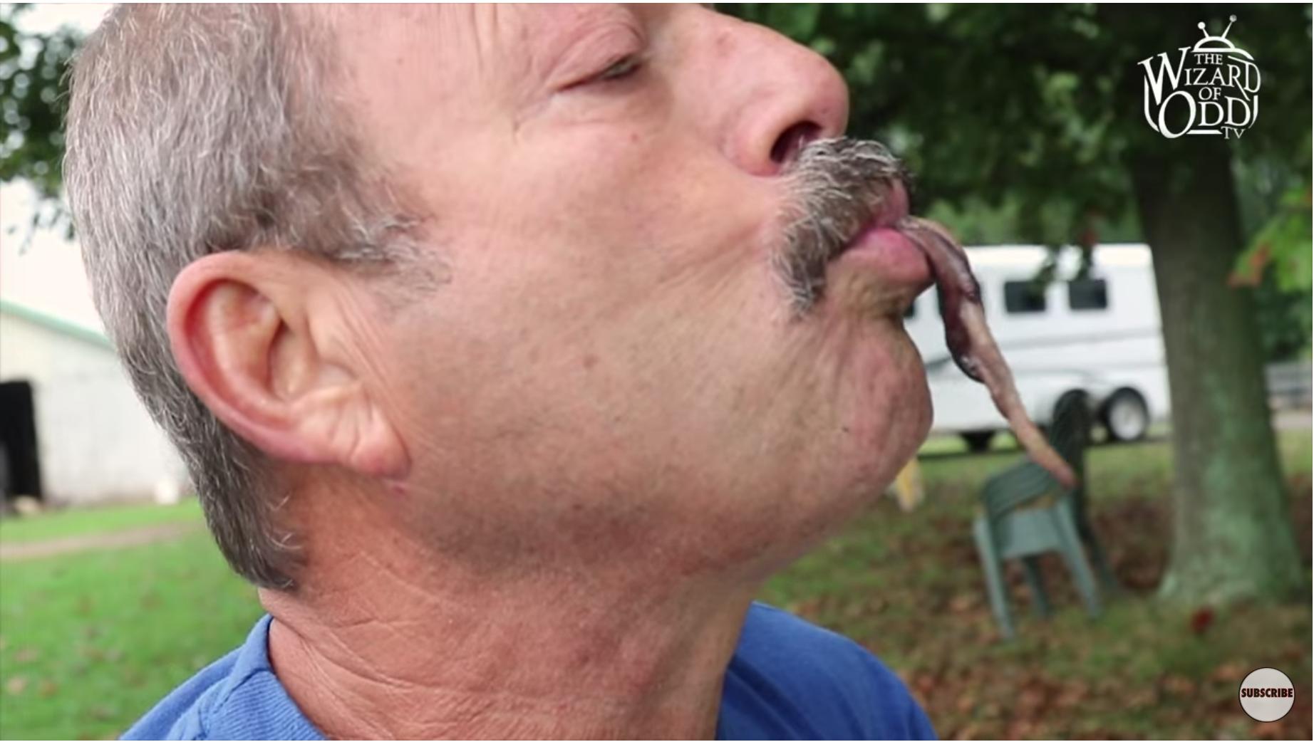 viermi în nas tratament avansat al helmintiazei