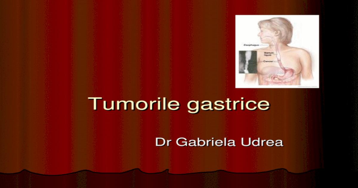 cancer gastric stadiul 3