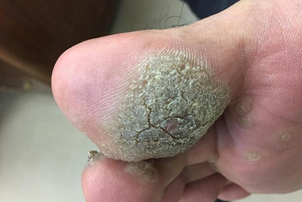 Keratotic papilloma meaning Deceler papillomavirus chez l homme