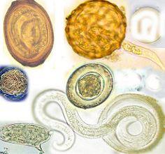laryngeal papilloma medical term paraziti u tijelu covjeka