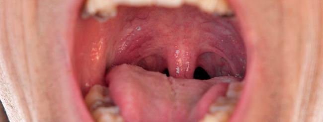 cauterizarea chimică a verucilor genitale cancerul bucal se vindeca