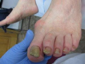 Ulcere între cauza degetelor de la picioare, Cauzele ulcerului de picior