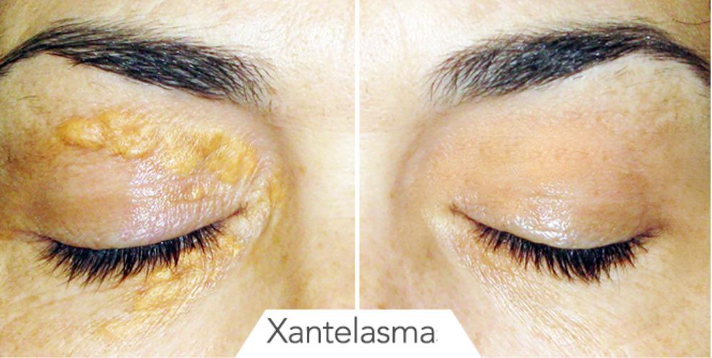 recenzii de îndepărtare a papilomului facial care antihelmintic este mai bun pentru prevenire
