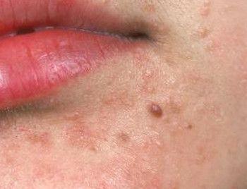 viral papilloma face