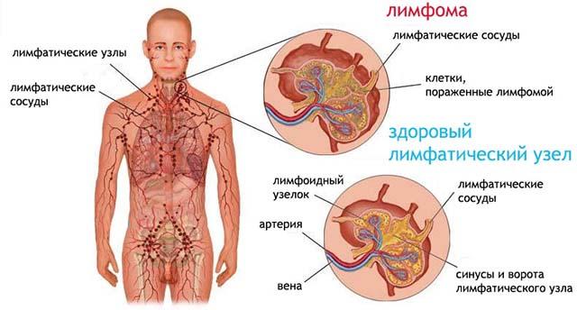 cum să vă detoxifiați ficatul