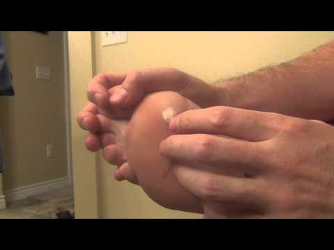 Wart right foot icd 10