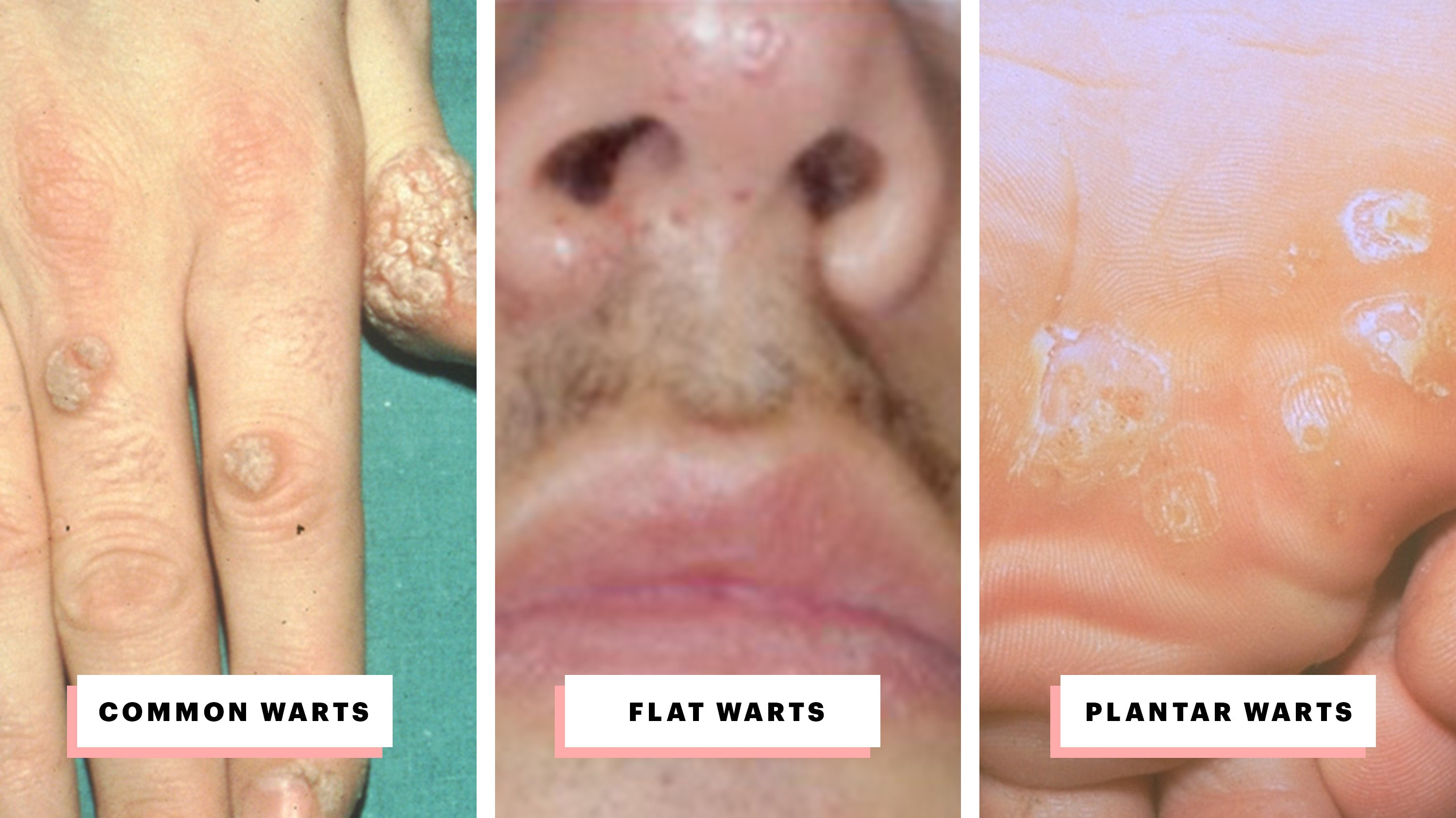 hpv causes warts on face