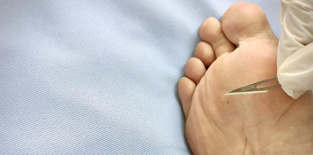 îndepărtarea papilomului microchirurgie oculară)