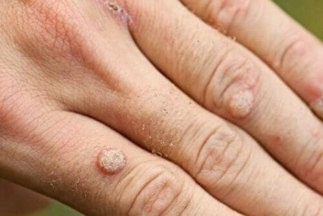 negi pe mana produse naturale pentru detoxifierea colonului