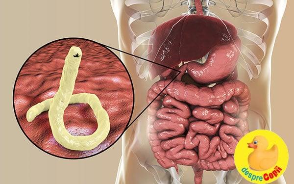 viermi in stomac simptome