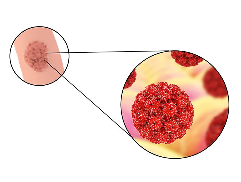 ce este negii plate cura cu sfecla rosie pentru ficat