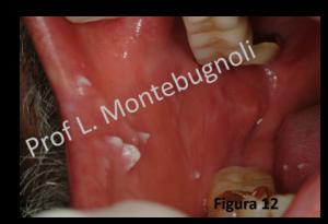papillomavirus bocca sintomi