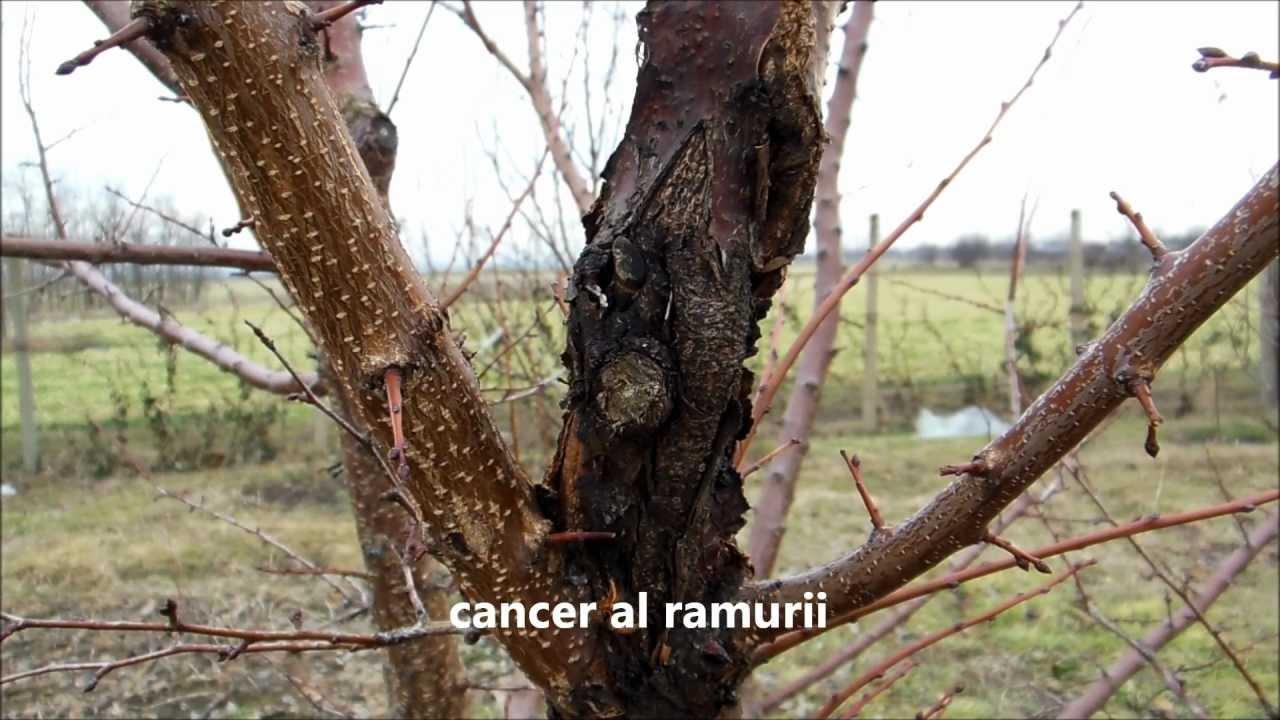 cancer bacterian copaci)