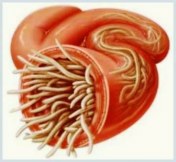 ovare și paraziți vii schistosomiasis uk