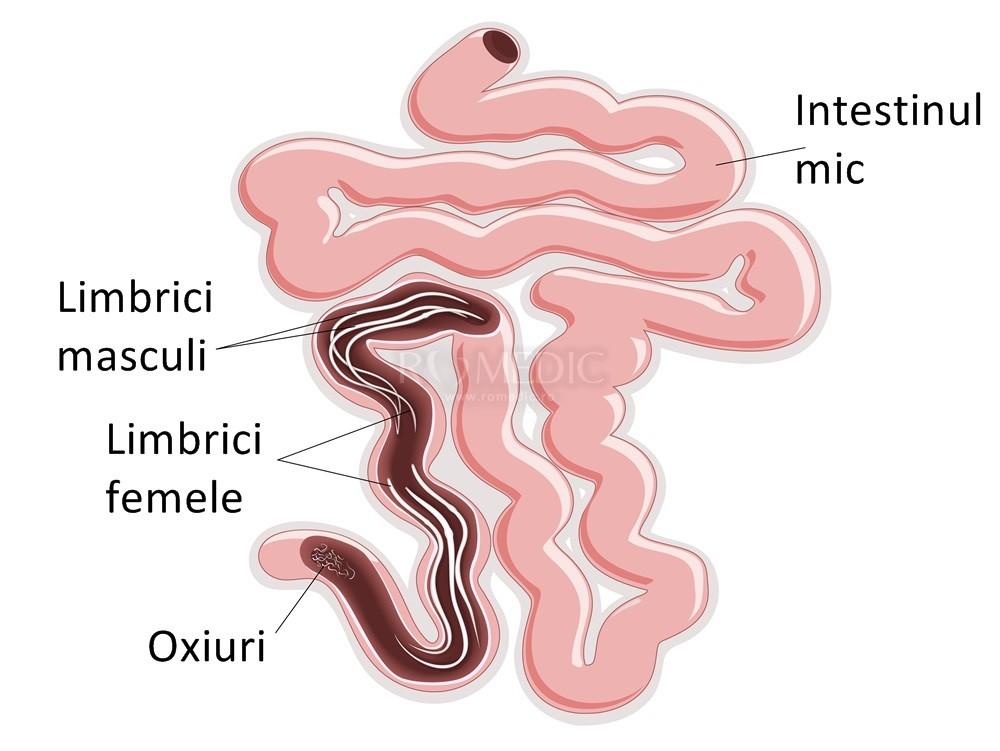 simptome de enterobioză la copii)