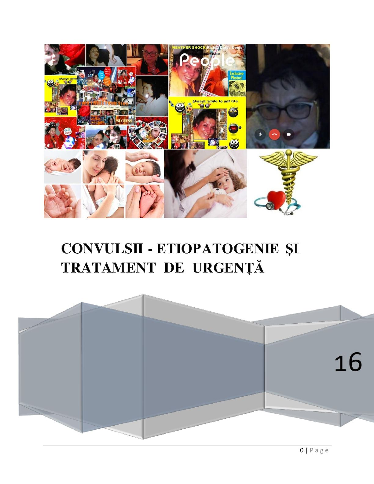 varicoză tratamentul convulsiilor)