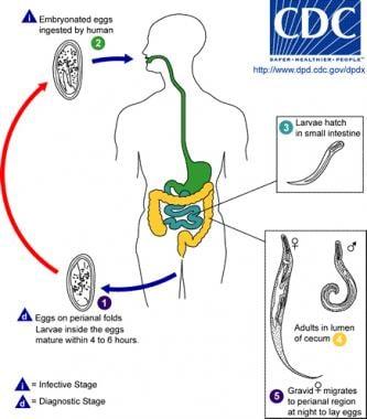 oxiuriasis of enterobiasis îndepărtarea condilomului negilor