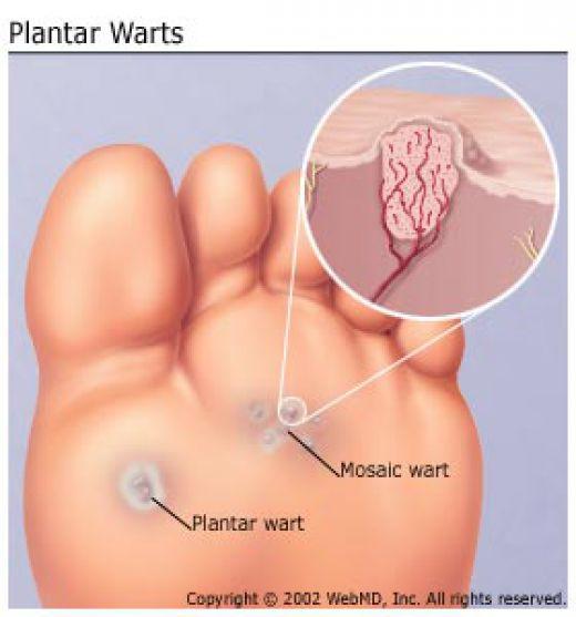 warts treatment singapore metoda chirurgicală genitală a condilomului