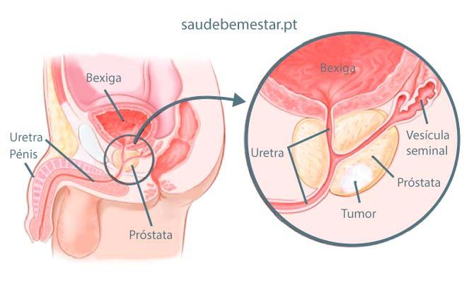 Căi de infecție pitic pitic, Pagina principală
