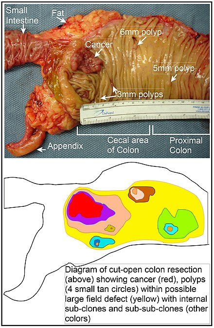cancerul de colon la copii detoxifierea organismului de medicamente